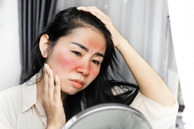 Asian woman having problem with sunburn on face