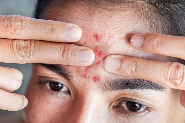 Asian woman squeezing pimples on her forehead