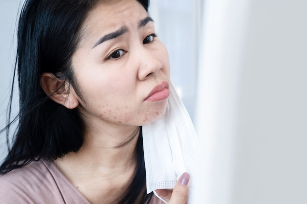 フェイスマスクのためあごの下ににきびと発疹の皮膚アレルギーを持つアジアの女性