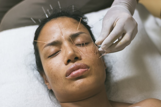Asian women acupuncture on face to maintain health