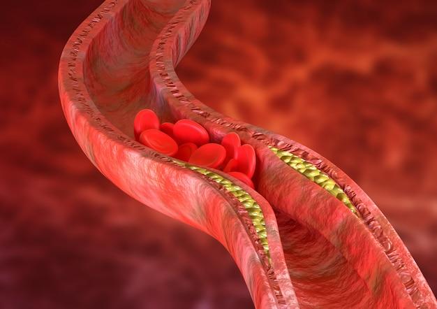 죽상 동맥 경화증은 동맥 벽에 콜레스테롤 플라크가 축적되어 있습니다.