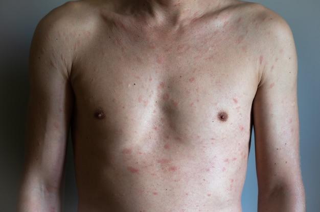 Текстура аллергии атопической экземы больной кожи человека. мужчина с симптомами зудящей крапивницы.