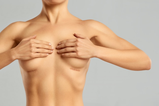 Attractive woman body with smooth skin after enlargement of breasts.