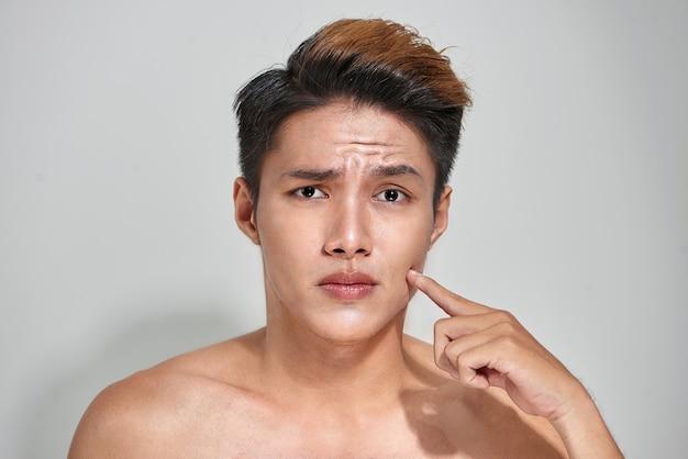 肌トラブルのある魅力的な若々しい裸の男性。