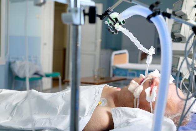 集中治療室の昏睡状態のavlの下で挿管された成人白人男性。危篤状態の患者。