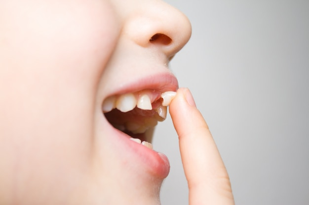 Baby girl  shaking wobbly milk tooth in open mouth with her finger.
