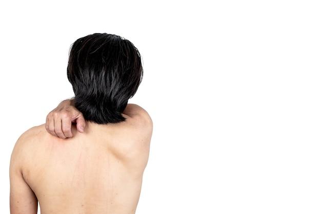 Спина человека, использующего руку, чтобы почесать спину, помогает поцарапать область кожи, зудящую от дерматита