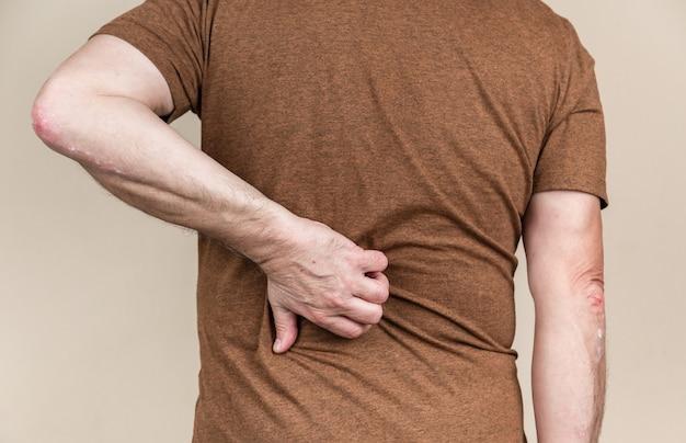 다시 건선. 남자 손에 가려움증을 긁적입니다. 건강과 의학의 개념