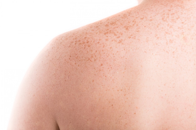 Back skin with freckles closeup