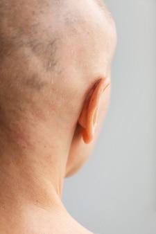 Вид сзади женщины с раком кожи