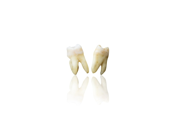 Background of extraction teeth on isolate white background with clipping path