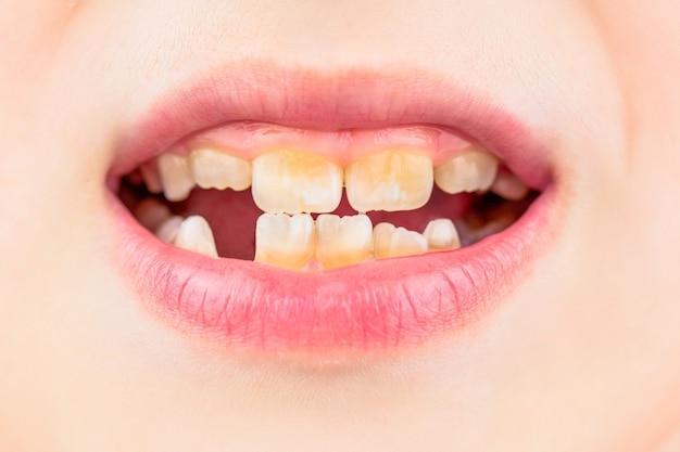 Плохие зубы у ребенка. мальчик портрета с плохими зубами. ребенок улыбается и показывает свой скученный зуб. закройте нездоровые молочные зубы. открытый рот пациента пациента показывает кариес зубов кариеса.