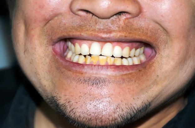 치료 전 나쁜 이빨과 미소