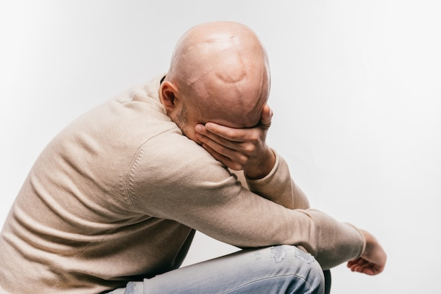 Bald man in stress and depression struggling for life arter brain tumor