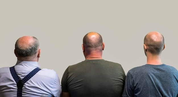 Bald men rear view, head with hair loss.