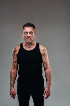 A battered man in a black t shirt who looks like a drug addict and a drunk stands against a gray background
