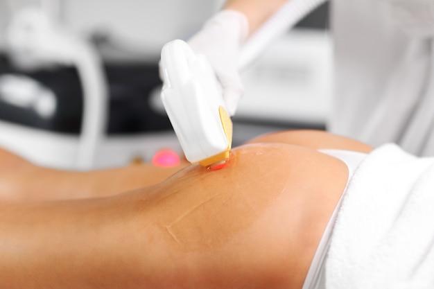 Косметолог дает лечение лазером эпиляции женщине на ягодицах