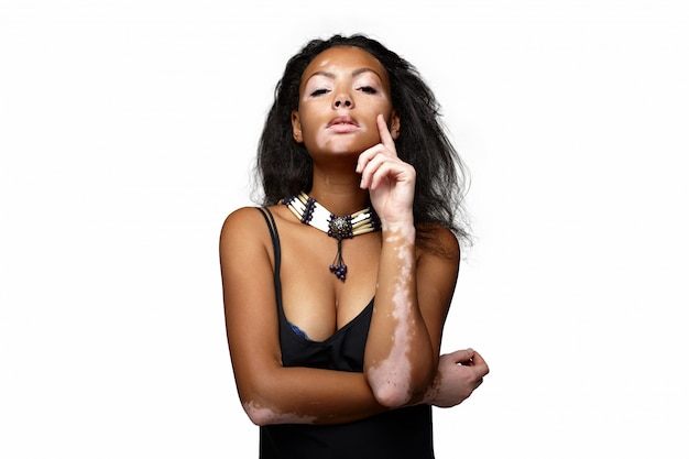 Beautiful african girl in studio with skin problems vitiligo.