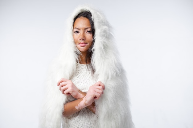 A beautiful african girl with skin problems is dressed in warm white faux fur. vitiligo concept