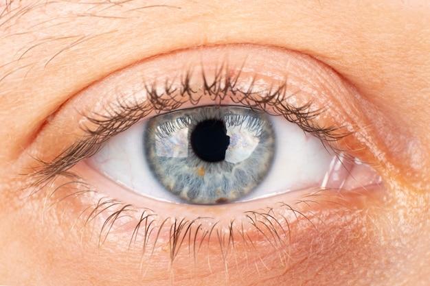 Красивый женский глаз, диагностика кератоконусной дистрофии роговицы.