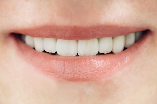 美しい女性の歯マクロジルコニウム。ジルコニウム人工歯のクローズアップ笑顔写真。磁器とジルコニア橋。