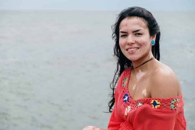 Красивая латинская девушка с витилиго на пляже. всемирный день витилиго. нарушения пигментации. депигментация кожи. хроническое заболевание кожи.
