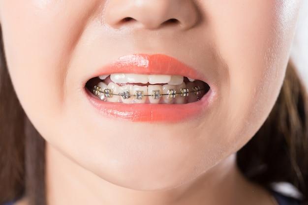 중괄호와 하얀 치아의 아름 다운 매크로 촬영