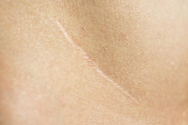 충수 절제술 후 피부에 아름다운 수술 흉터