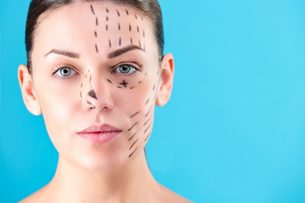 Beautiful woman face. beauty portrait of young woman brunette smiling, painted lines on the face for cosmetic surgery on blue background. cosmetic surgeon blepharoplasty. rhinoplasty