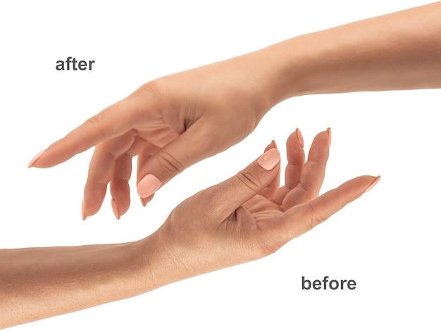 Красивые руки женщины. женские руки до и после нанесения крема, лосьона. концепция спа и маникюра. женские руки с французским маникюром. мягкая кожа, концепция ухода за кожей. уход за кожей рук. изолированные на белом