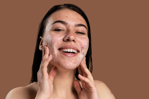 Beautiful woman showing her acne with confidence