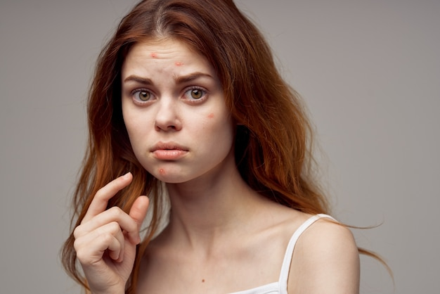 Beautiful woman in a white tshirt pimples on the face isolated background
