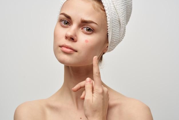 Красивая женщина с прыщиком на лице в студии косметологии