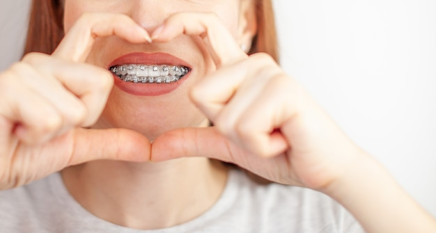 A beautiful woman with braces on her white teeth through a frame from her hands. straightening and dental hygiene. dental care.