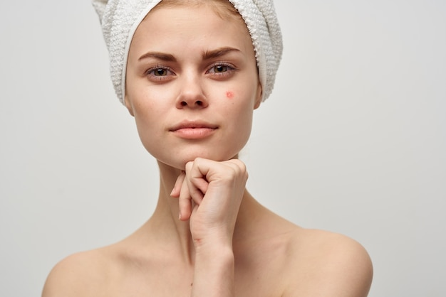 Beautiful woman with a towel on my head dermatology isolated background