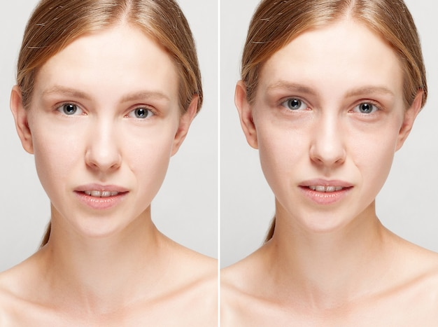 Before and after cosmetic operation