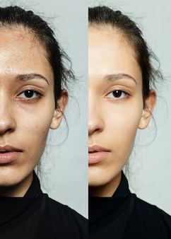 Before and after cosmetic or plastic anti-age procedure