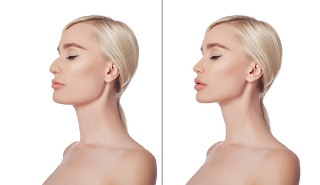 Before and after plastic chin surgery woman. cosmetic chin correction, plastic surgery, reduction surgery, nose reduction. aesthetic medicine. portrait beautiful young woman after plastic surgery