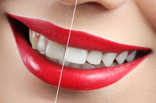 Before and after shot of red lipped woman teeth whitening