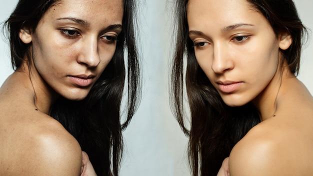 До и после косметической операции. молодая красивая женщина портрет. до и после косметики