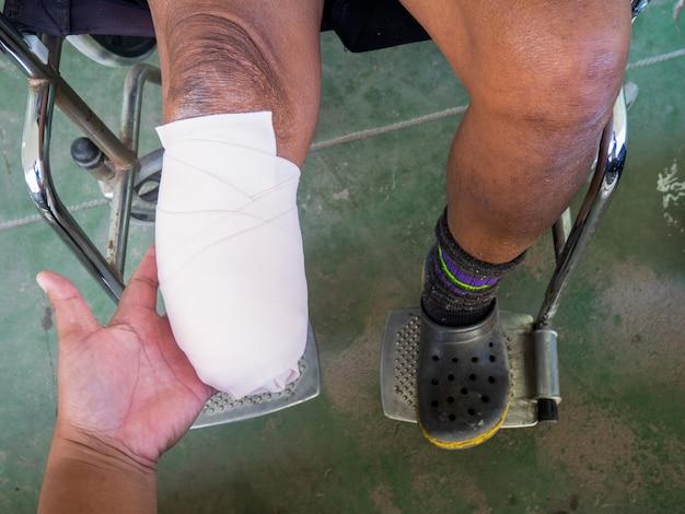 弾性包帯による膝下切断