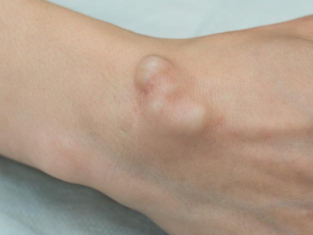 큰 낭종 hygroma, 관절과 관련된 액체로 채워진 덩어리, 관절 상단의 종양 또는 부종.