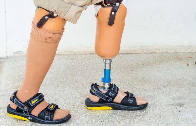 二国間切断者の歩行と歩行訓練