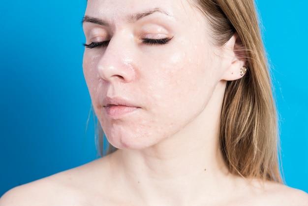 Биоревитализация реальной кожи. следы инъекций биоревитализации на лице женщины