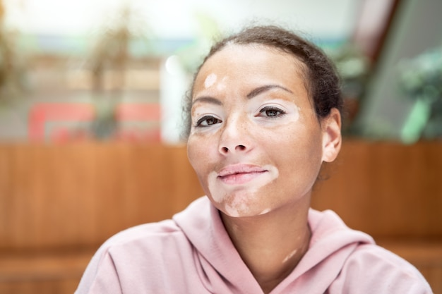 白斑色素沈着の皮膚の問題を持つ黒人のアフリカ系アメリカ人女性屋内服を着たピンクのパーカーは、肖像画の物思いにふける黒人女性のことを考えてクローズアップ