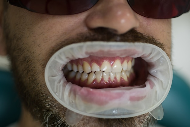 歯科医院での歯の漂白。手術中に患者が痛みを感じないように麻酔薬を投与します。ホワイトニング後の比較。歯を白くする。