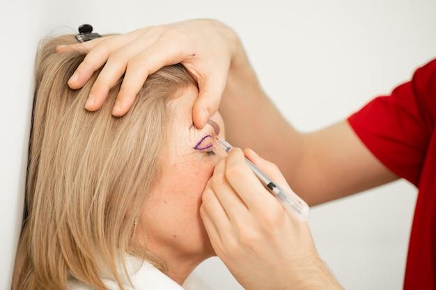診療所で顔の目の領域を変更するための形成外科手術前の顔の眼瞼形成術マークアップのクローズアップ。プラスチック化粧品手術をしている医者