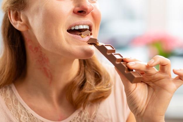 チョコレートバーを食べる発疹と赤くなった首を持つブロンドの髪の成熟した女性