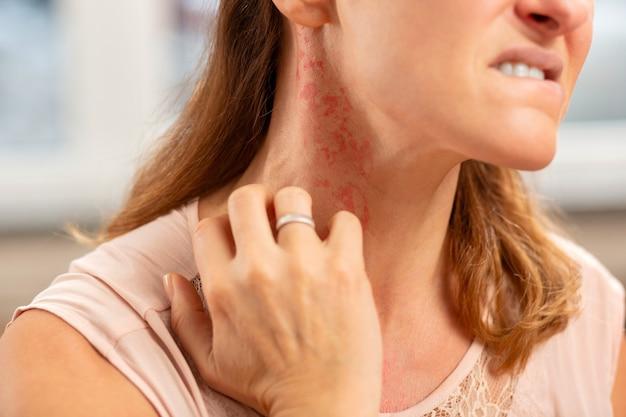 Blond woman wearing ring on finger having rash on neck because of allergy