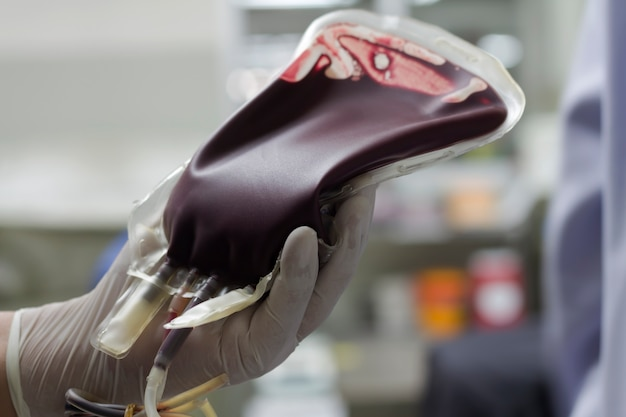 Blood donor in blood bag